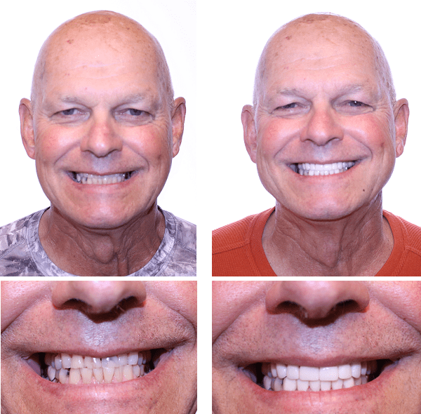 Dental before and after photos of dental patient at Northcutt Dental
